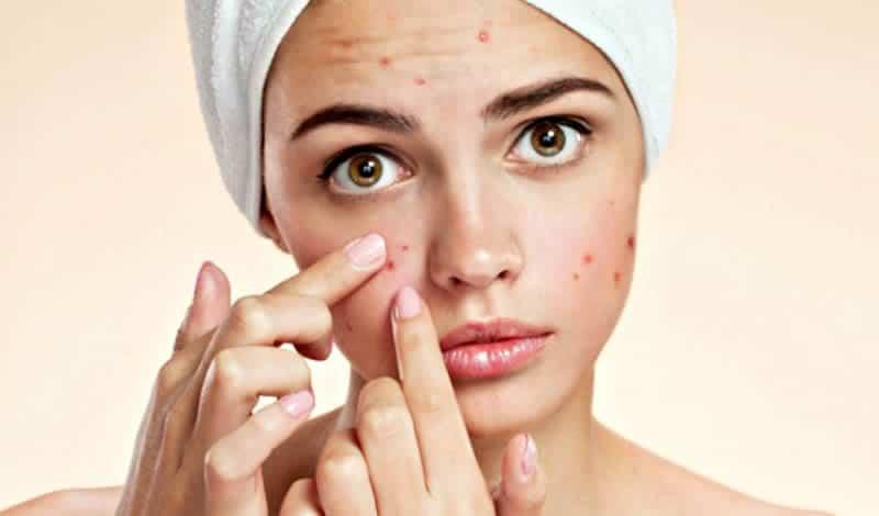 Cómo curar el acné con Vinagre de Manzana