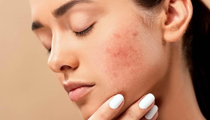 Remedios caseros para la piel